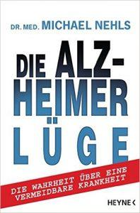 Alzheimer Test, Demenz Test